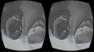 Oculus-Sinus-Demo-2